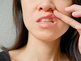 Canker Sore Treatment in Santa Monica, CA