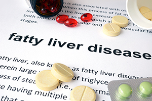 Fatty Liver Disease Treatment in Troy, AL