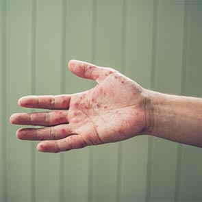 Hand, Foot, and Mouth Disease Treatment in Austell, GA