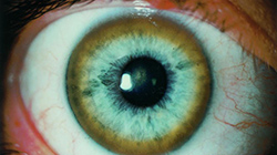 Blue eye showing Kayser-Fleischer ring around iris, a strong symptom of Wilson's Disease