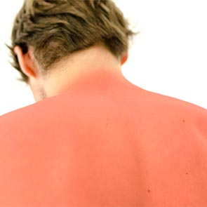 Sun Poisoning Treatment in Morristown, TN