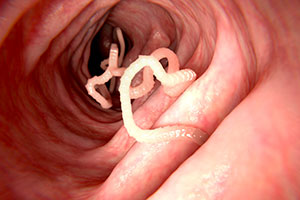 Tapeworm Treatment in Norcross, GA